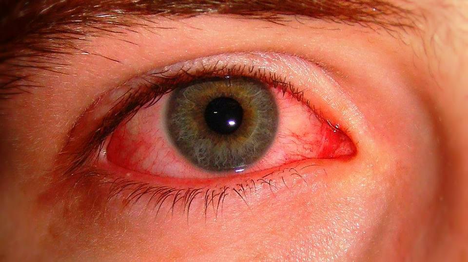size_960_16_9_1024px-Pink_eye